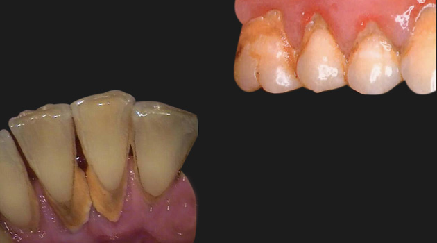 Bad Breath Treatment >> Dental Gum Treatment Ahmedabad Gujarat India,Dental Clinic and Implant Center,Dentist,Cosmetic ...