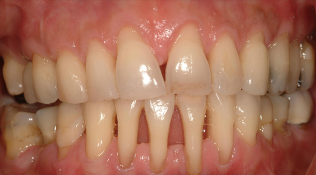Dental Gum Treatment Ahmedabad Gujarat India Dental Clinic