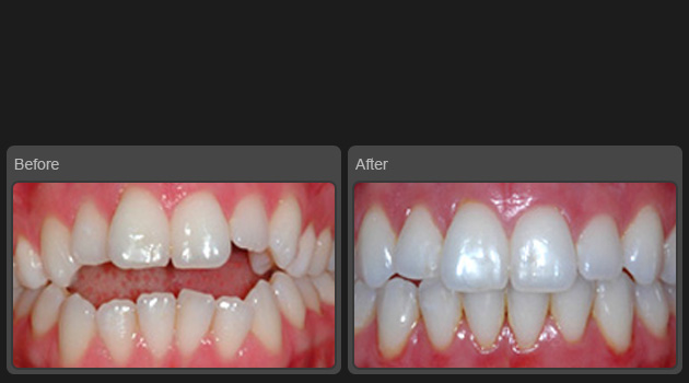 Orthodontia Braces Treatment Ahmedabad Gujarat India