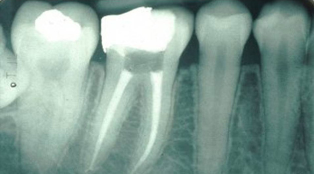 Painfree Rct Root Canal Treatment Ahmedabad Gujarat India