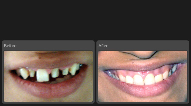 Teeth Replacement At Shwet Dental Clinic And Implant